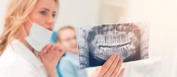 Czy zęby mądrości są nam potrzebne?