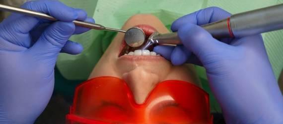 Lakowanie zębów. Rola i znaczenie zabiegu
