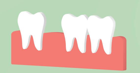 Diastema, czyli krępująca przestrzeń pomiędzy zębami
