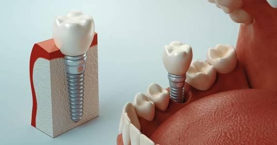 Wszczepianie implantów stomatologicznych. Na czym to polega?