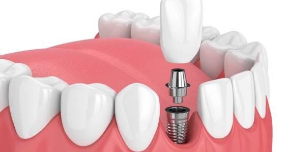 Jak zbudowany jest implant zębowy?