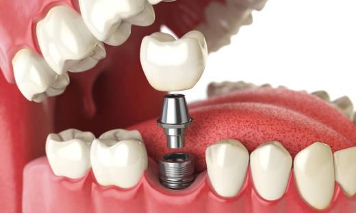 Podstawowe rodzaje implantów zębowych