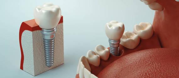 Protetyka na implantach - możliwości zaopatrzenia protetyczne