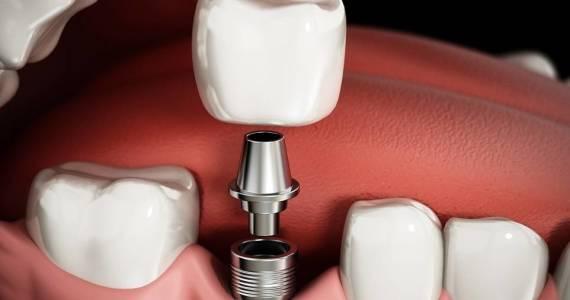 Wszczepianie implantów zębowych. Przebieg zabiegu