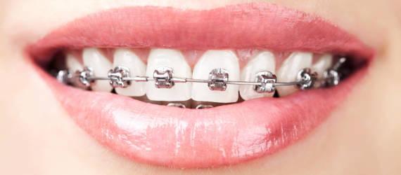 Jak długo trwa leczenie ortodontyczne?