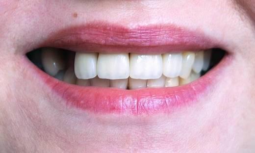 Brak zębów - konsekwencje zdrowotne