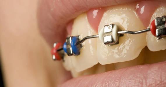 Jaki kolor gumek ortodontycznych do aparatu wybrać?