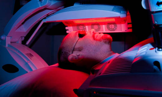 Na czym polega terapia fotodynamiczna?