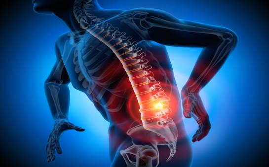 Co zrobić, gdy boli kręgosłup?