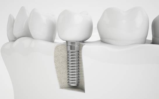 Budowa implanta zębowego