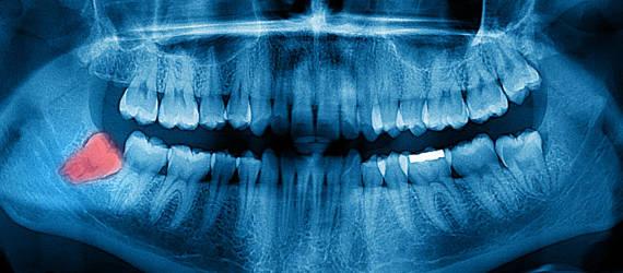 Czym jest ząb zatrzymany?
